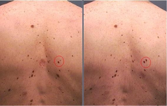 diagnostic_6_mesos_fotofinder_dermatoscopia_digital_cancer_pell_dr_lopez_barcelona_dermatoleg