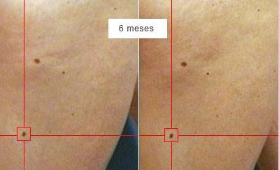 diagnostic_6_mesos_vista_ull_nu_cancer_pell_dr_lopez_barcelona_dermatoleg