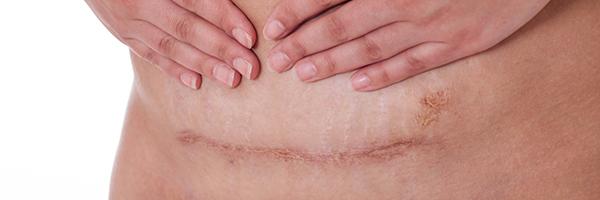 dr-lopez-gil-dermatologia-barcelona-600x200-cicatrices-queloides-laserterapia-laser