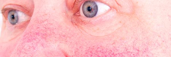 drlopezgil_dermatologia_barcelona_600x200_cuperosi