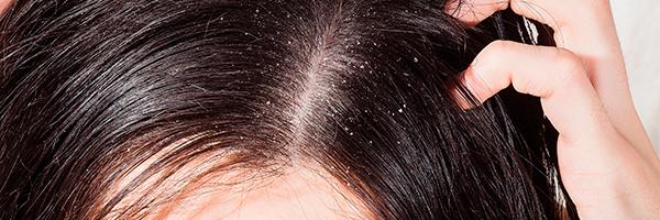 dr-lopez-gil-dermatologo-barcelona-dermatitis-seborreica-caspa-pelo-cabello-tratamiento-600x200