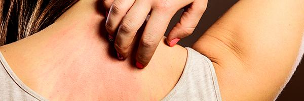 drlopezgil_dermatologia_barcelona_600x200_eccemas_erupciones