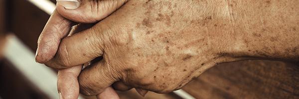 tratamiento-eliminar-manchas-piel-lentigos-dermatologo-cirujano-barcelona-doctor-lopez-gil