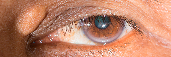 drlopezgil_dermatologia_barcelona_600x200_xantelasmas