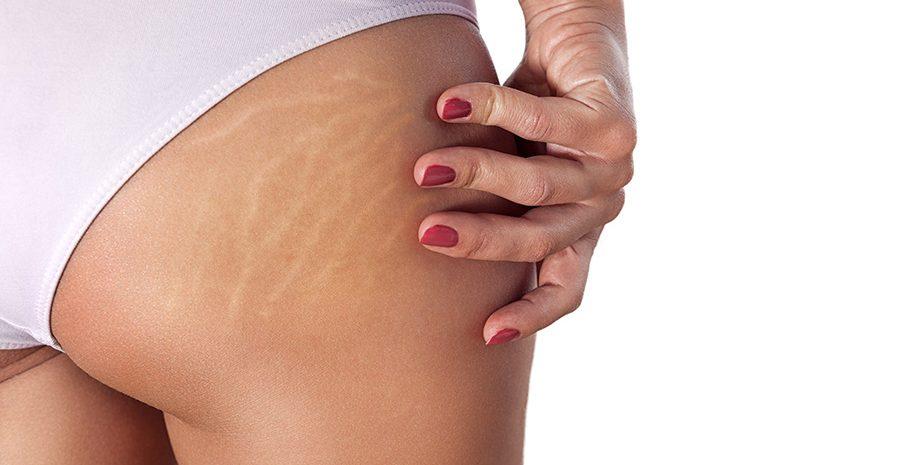 estrias-cicatrices-piel-agrietada-embarazo-brazos-piernas-muslos-tratamiento-borrar-quitar-eliminar-barcelona-dermatologo-teknon-dr-lopez-gil