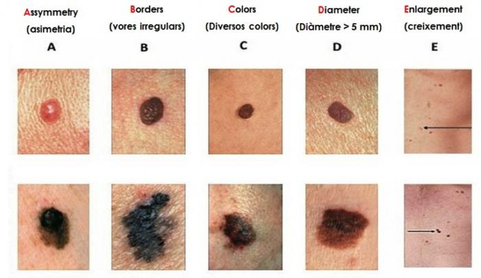 cáncer de piel manchas en la cara