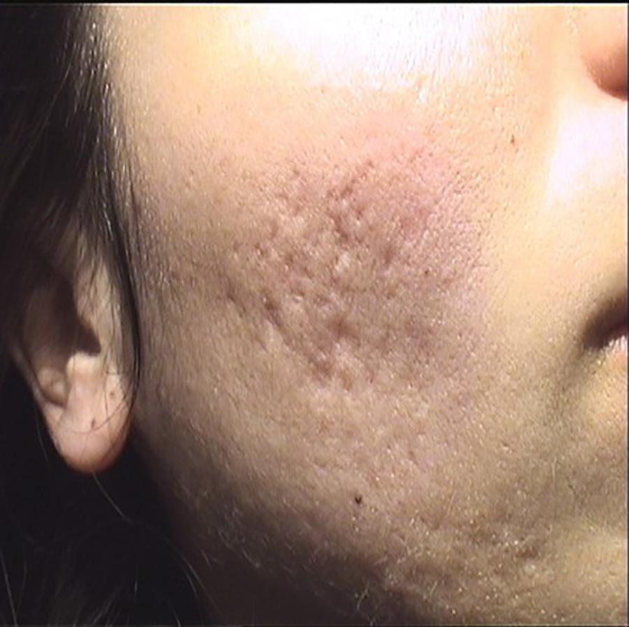 Fotos: antes del tratamiento láser eliminar cicatrices y marcas de acné. Dr. López Gil Clínica Teknon, Barcelona.