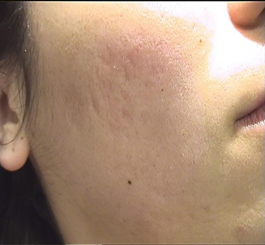 Fotos después del tratamiento láser eliminar cicatrices y marcas de acné. Dr. López Gil Clínica Teknon, Barcelona.