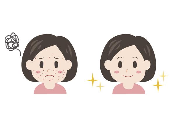 granos-acne-adolescente-juvenil-nens-hormonas-hormones-dermatologia-dermatologo-dr-lopez-gil-teknon-barcelona-