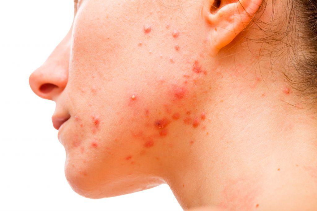 granos-acne-granets-grans-adolescentes-adolescent-joves-hormonas-hormones-dermatologo-dr-lopez-gil-clinica-teknon-barcelona-min