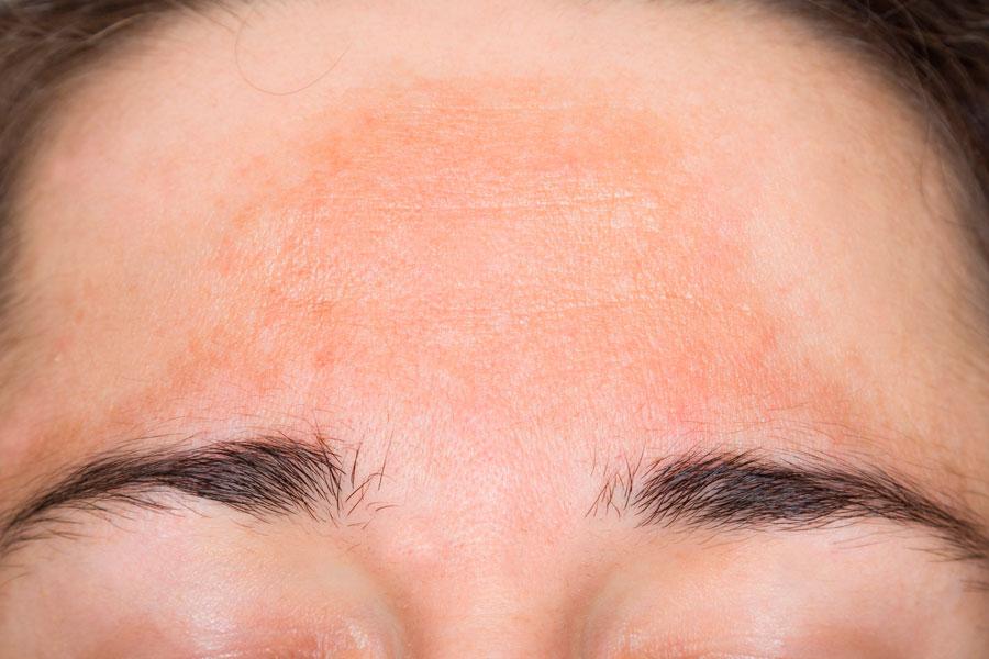 mancha-frente-cara-melasma-tratamiento-laser-despigmentante-hormonas-embarazo-dermatologia-dermatologo-dr-lopez-gil-teknon-barcelona