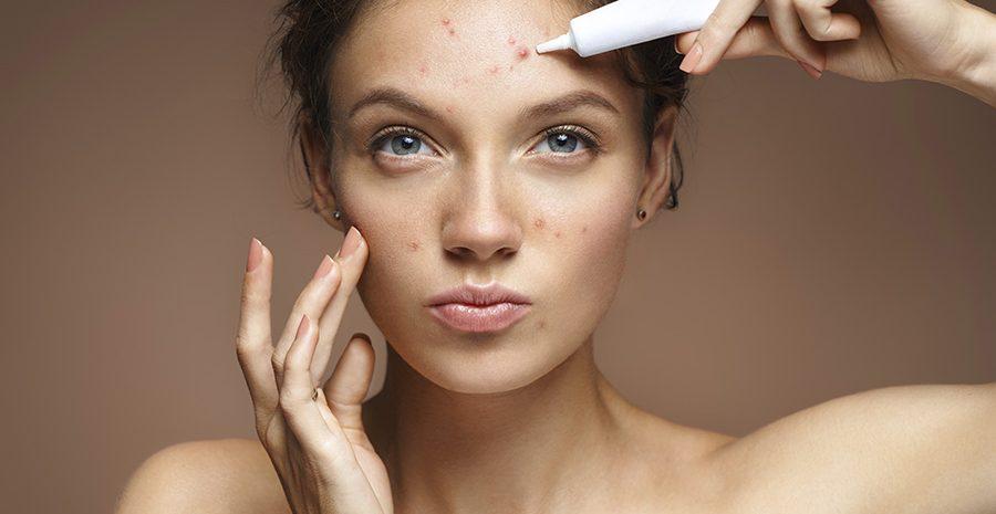 mejor-tratamiento-acne-laser-barcelona-clinica-dermatologo-teknon-consulta-dermatologia