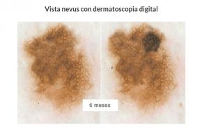 nevus-dermatologo-barcelona-tratamiento-prevencion-cancer-piel-dermatoscopia-digital-pecas-lunares-carcinoma-melanoma-teknon-dr-lopez-gil