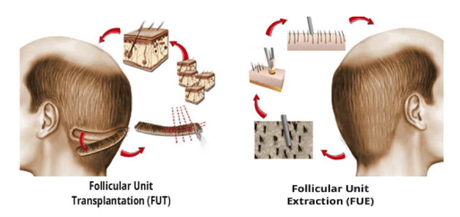 proceso-transplante-pelo-capilar-microinjerto-clinica-alopecia-barcelona-dr-francisco-lopez-gil-Tekno