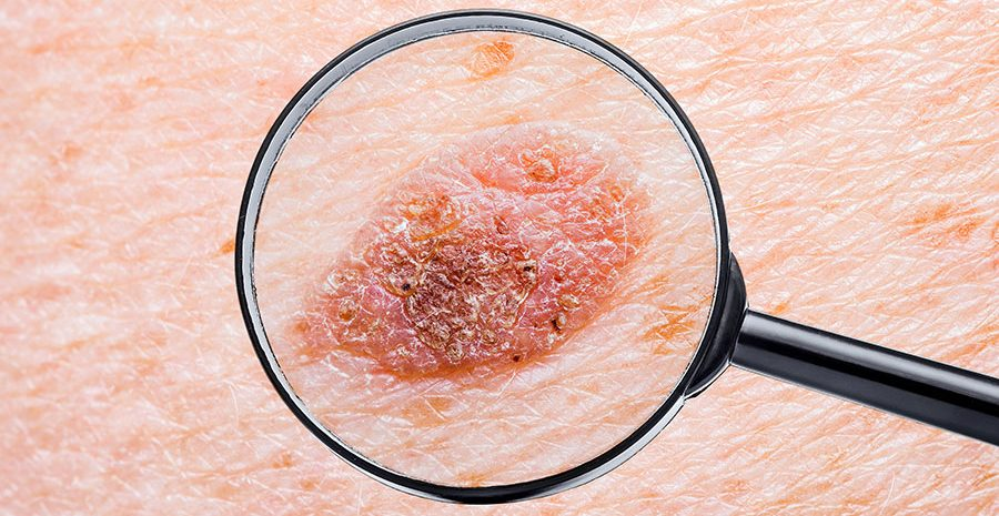 prueba-deteccion-lunares-pecas-control-dermatologo-revisar-melanoma-cancer-de-piel-dermatologia-dermatologo-dr-lopez-gil-clinica-teknon-barcelona-