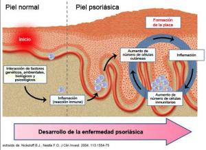 psoriasi-dr-lopez-gil-dermatologo-barcelona
