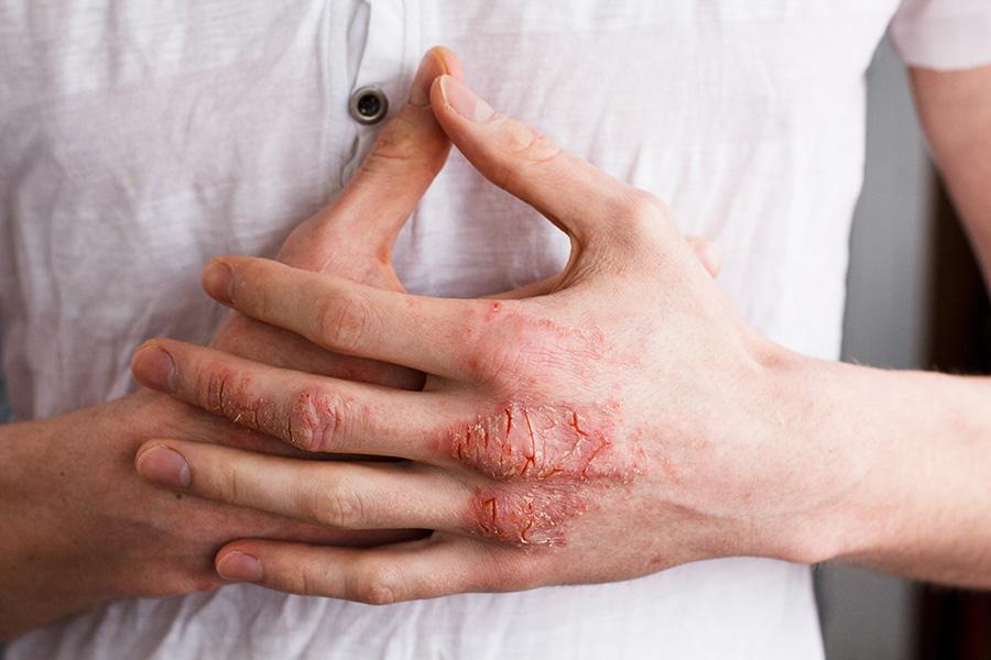 psoriasis-manos-codos-frio-sequedad-heridas-picor-tratamiento-dermatologo-drlopezgil-Barcelona-clinica-teknon-consulta
