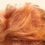 ¡Se me cae el pelo! Tratamientos que funcionan para frenar la caída del pelo en mujeres