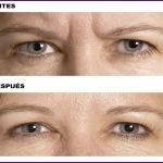 ¡Rejuvenece y despídete de las arrugas! Los mejores tratamientos