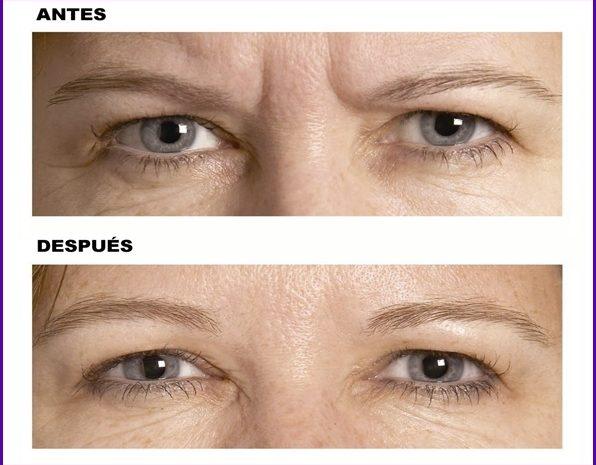resultados-antes-despues-botox-eliminar-arrugas-entrecejo-expresion-clinica-estetica-barcelona-dermatologo-dr-lopez-gil