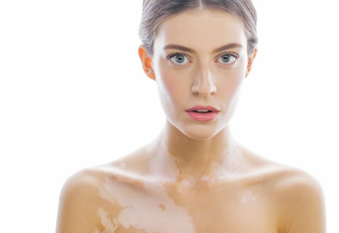 tratamiento-vitiligo-manchas-blancas-color-piel-melanina-puva-terapia-dermatologia-sol-verano-dermatologo-dr-lopez-gil-dermandtek-teknon-barcelona
